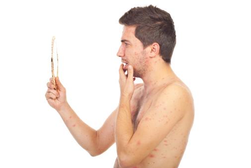 Varicella sintomi negli adulti