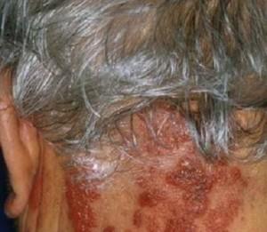 herpes zoster nei soggetti anziani