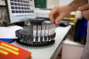 somministrazione di immunoglobuline specifiche