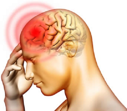 encefalite-erpetica