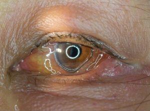 virus della varicella-zoster congiuntivite virale